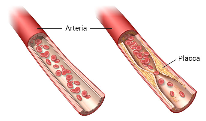 Aterosclerosi e arteriopatia - Stenosi ad un'arteria