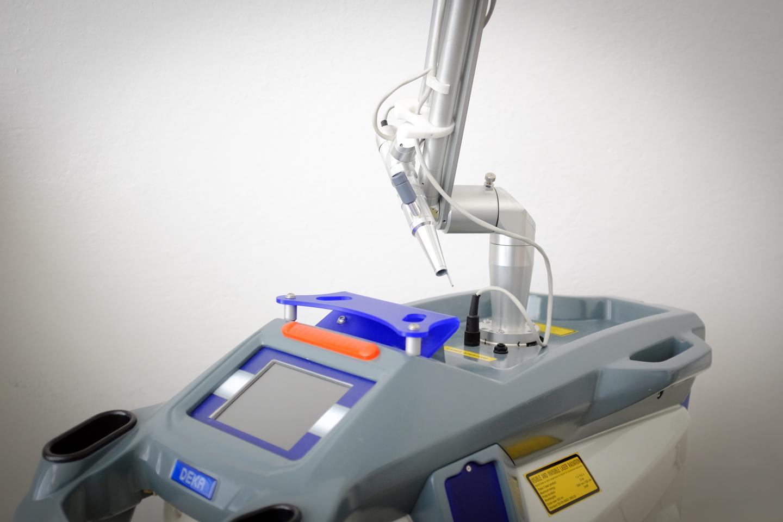 Laser Q-switched per la rimozione delle macchie della pelle